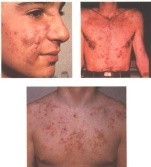 Acne infected image of Chests of two men and face of a woman
