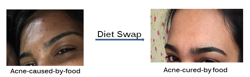 Appearance and Disappearance of Acne-Diet-Swap