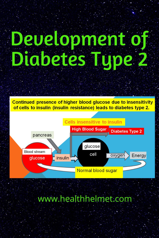Development-of-type-2-diabetes